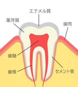 虫歯_治療費_歯の断面図