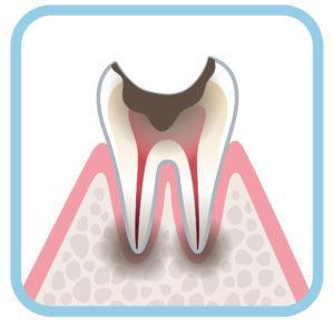 虫歯_治療費_虫歯C4
