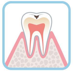 虫歯_治療費_虫歯C1