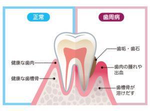 歯磨き_血_歯周病