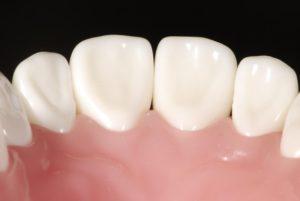 前歯_虫歯_治療の前歯画像