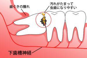 親知らず_腫れ_智歯周囲炎