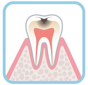 虫歯_黒い点_C1