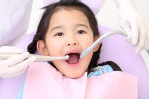 虫歯 治療