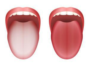 舌磨き_方法の舌イメージ