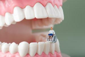 歯 ボロボロ