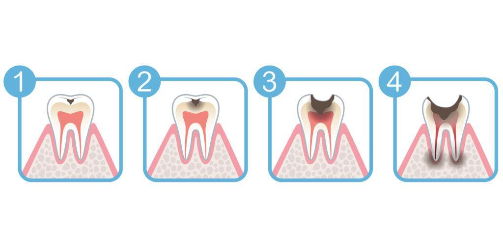 虫歯_痛み_虫歯の進行