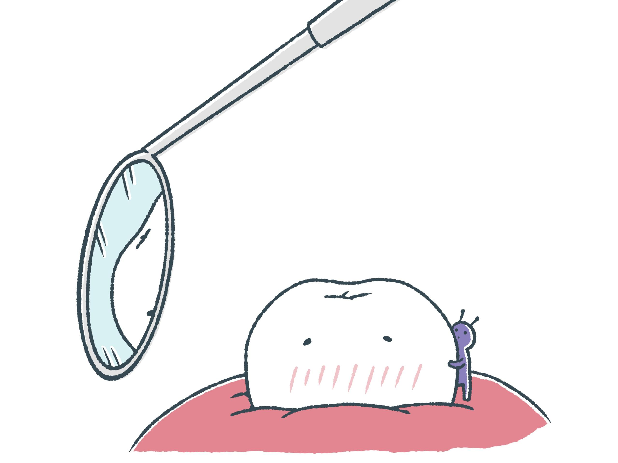 もしかして虫歯?痛みの対処法と虫歯の基礎知識